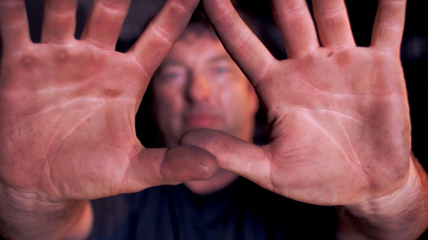 Welder Hands